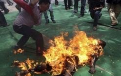 Chồng cuồng ghen, tưới xăng đốt vợ khiến cả 2 cháy như đuốc