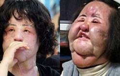 Thảm họa dao kéo Hàn Quốc Han Mi Ok: Điên cuồng thẩm mỹ, tự tiêm dầu ăn bẩn, silicon