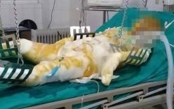Điện Biên: Chồng say rượu tẩm xăng thiêu sống vợ, 5 đứa con nhỏ lâm vào cảnh mồ côi