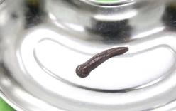Kinh hoàng gắp đỉa trâu gần 10 cm sống trong cổ họng người đàn ông ở Phú Thọ