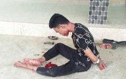 Vụ chồng nghi giết vợ, ôm thi thể trong nhiều giờ: Xác định nguyên nhân tử vong