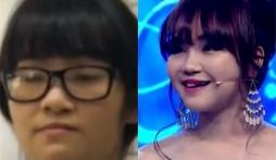 Nữ sinh Hà Nội xinh đẹp bội phần sau phẫu thuật thẩm mỹ