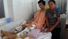 Tai nạn thảm khốc ở Thái Lan: Phút trườn ra khỏi xe phát nổ với cái chân bị gãy làm 3
