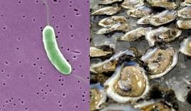 Cảnh báo tử vong khi tắm biển do vi khuẩn ăn thịt người