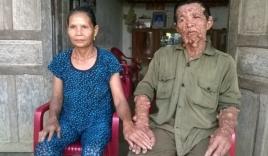 Hai mối tình của người đàn ông mang hàng ngàn khối u