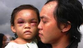 Xuất hiện tình tiết bất ngờ vụ bé gái 4 tuổi bị đánh dã man