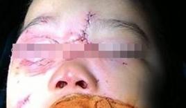 Bé 3 tuổi bị chó nhà cắn rách tai, giác mạc và dây chằng