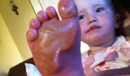 Bé gái suýt mất chân vì giẫm lên đồ chơi trong ngày nắng nóng