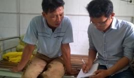 Tai nạn thảm khốc ở Thanh Hóa: Lời kể của nạn nhân sống sót