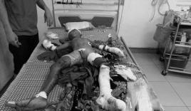 Bé trai bị đa chấn thương do đồ chơi lạ phát nổ