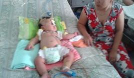 Bé trai 8 tháng tuổi mắc hội chứng 'ăn' tế bào máu ở Tiền Giang