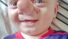 Lạ kỳ bé trai có não phát triển bên trong mũi