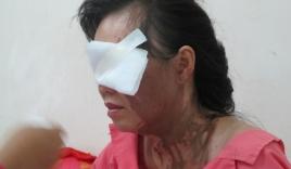 Đang chở con gái đi học, người phụ nữ bị tạt axit giữa trung tâm Sài Gòn