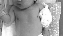 Bé gái 4 tuổi đánh gãy tay em trai mới sinh vì bị trêu 'ra rìa'