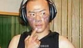 Nhĩ Thái 'Hoàn châu cách cách' tiết lộ gương mặt từng bị bỏng nặng