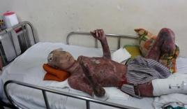 Phẫu thuật 14 lần để cứu sống bệnh nhân bị bỏng nặng