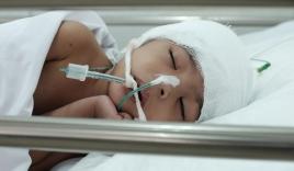 """Mẹ bé gái 3 tuổi té cầu thang chấn thương sọ não nặng khi theo mẹ đi giúp việc: """"Tôi không bỏ con mình'"""