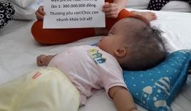 Đã quyên góp được gần 500 triệu đồng chuẩn bị cho ngày mai đưa bé gái 'đầu to' đi Singapore chữa bệnh