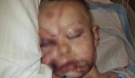 Bức ảnh mà các bậc phụ huynh nên lưu tâm chụp bé trai bị biến dạng khuôn mặt vì 2 con chó tấn công
