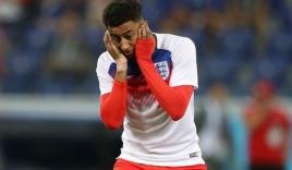 Đội tuyển Anh 'méo mặt' khi binh đoàn côn trùng 'hỏi thăm' World Cup