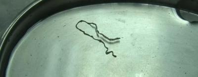 Bác sĩ phát hoảng khi lôi con ký sinh trùng dài 9cm từ não của cô gái 16 tuổi: Cảnh báo cẩn trọng từ món ăn nhiều người thích