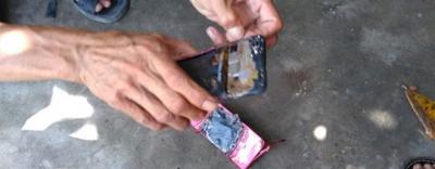 Bé trai 7 tuổi nát 2 bàn tay vì điện thoại phát nổ lúc vừa chơi vừa sạc