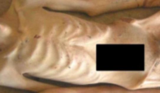 Rò rỉ hình ảnh tra tấn tù nhân khủng khiếp tại Syria