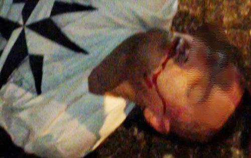 Lấy 2 chai rượu ngoại, Phó chủ tịch xã bị đánh 'vỡ mồm'