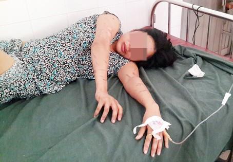 Nóng từ địa phương ngày 17/3: Đồng Nai - Người phụ nữ bị tra tấn như thời trung cổ