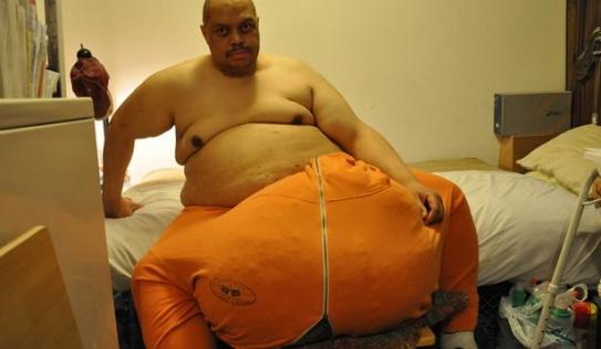 Cuộc sống của người đàn ông có túi tinh hoàn khổng lồ nặng hơn 60 kg