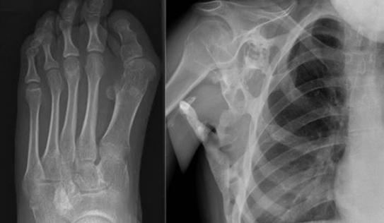 Kỳ lạ: Cô gái có 2 bộ xương trên cơ thể