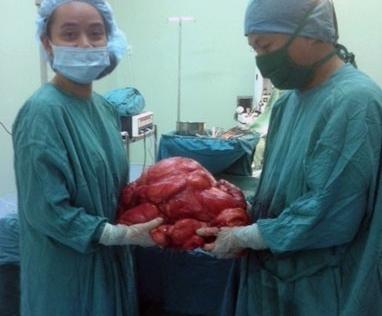 Phẫu thuật lấy khối u 11 kg trong bụng bệnh nhân