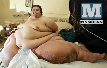 Cái chết bí ẩn của người đàn ông béo nhất thế giới
