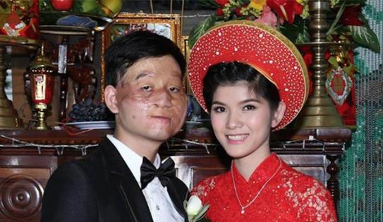 Cộng đồng mạng xôn xao đám cưới 'vợ xinh, chồng xấu' hiếm gặp