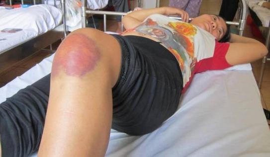 Kinh hoàng một phụ nữ mang thai bị giang hồ truy sát tại Hà Nội
