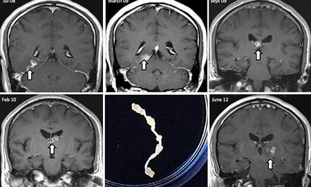 Phát hiện sán xơ mít ký sinh trong não người suốt bốn năm