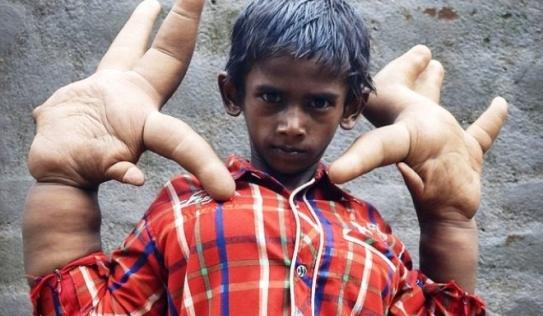 Cuộc sống thường ngày khốn khổ của cậu bé có đôi tay to như chân voi