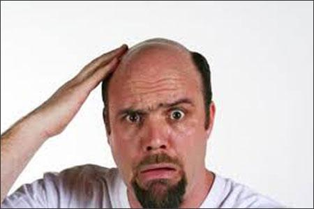 Cách chữa trị hói đầu bá đạo