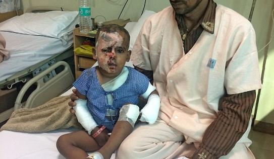 Ấn Độ: Bị cự tuyệt, kẻ theo đuổi mẹ hắt axit vào con trai 2 tuổi trả thù