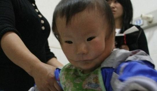 Xót xa em bé mang hai khuôn mặt vì mắc dị tật cực hiếm