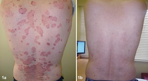 Kiểm soát bệnh vẩy nến hiệu quả bằng thảo dược Dr Michaels
