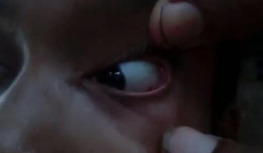 Bác sĩ sốc nặng khi phát hiện cả ổ kiến trong mắt bé gái