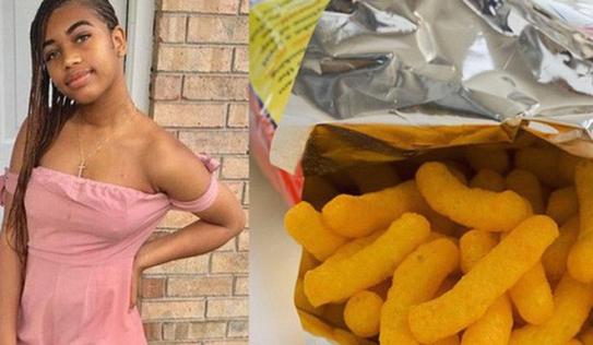 Ăn cay quá nhiều, cô gái 17 tuổi ở Mỹ phải cắt bỏ túi mật của mình