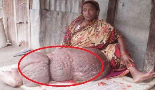 Chân bị biến dạng nặng gần 60 kg khiến người phụ nữ không thể cử động suốt 18 năm