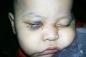 Bé 1 tuổi bị mù vì bác sĩ phẫu thuật nhầm mắt