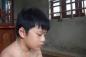 Hai học sinh lớp 7 bị thương do quạt trần rơi trúng đấu