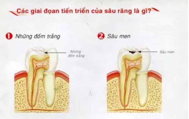 Vì sao đánh răng hàng ngày, răng vẫn bị sâu? 3