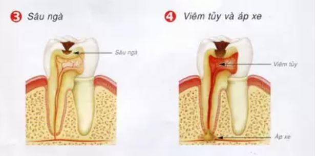Vì sao đánh răng hàng ngày, răng vẫn bị sâu? 4