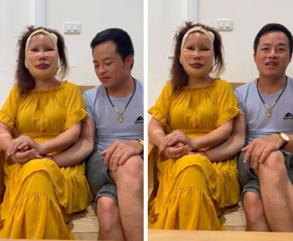 Bỏ cả đống tiền níu kéo tuổi xuân, 'cô dâu 62 tuổi' Thu Sao vẫn chưa khắc phục biến chứng hậu phẫu thuật 6