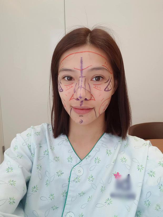 Lưu Đê Ly công khai sang Hàn Quốc đại phẫu toàn bộ gương mặt 1